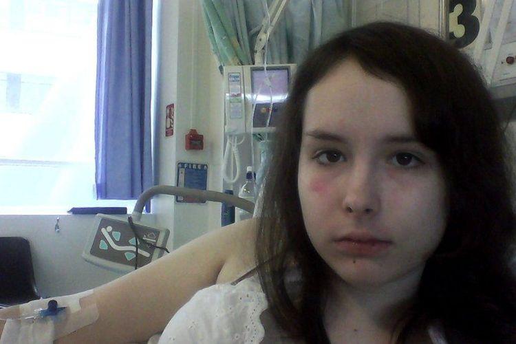 Diana Isajeva mengalami gagal ginjal total selama pembatasan sosial virus Covid-19 di Inggris.