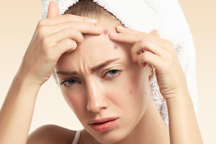 Sama seperti jerawat, jangan pencet komedo. Alih-alih menjadi cara menghilangkan komedo di hidung, cara tersebut malah dapat menimbulkan peradangan yang lebih parah.