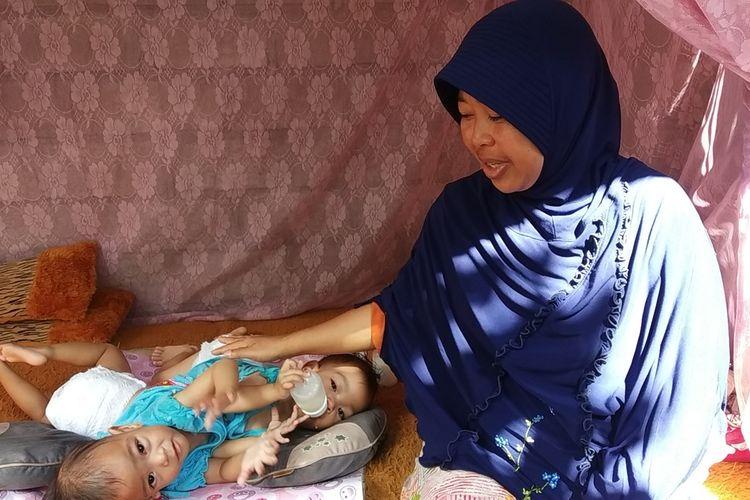 Bayi kembar siam Anaya dan Inaya saat tidur di Gazebo bersama ibunya