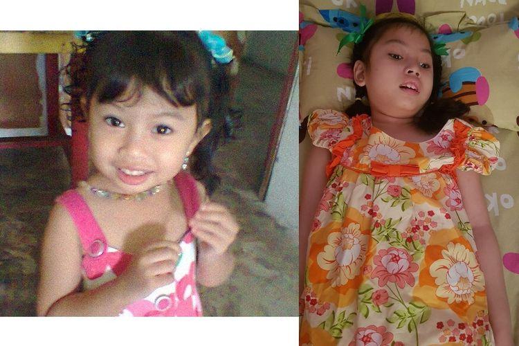 Foto kiri: saat Syafa berusia 3 tahun, foto kanan: saat Syafa berusia 8 tahun