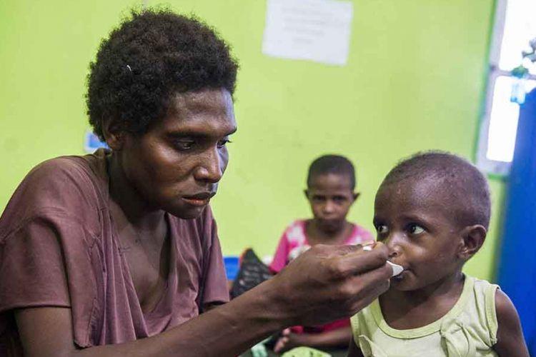 Seorang ibu memberikan susu kepada anaknya di Rumah Sakit Umum Daerah (RSUD) Agats, Kabupaten Asmat, Papua, Sabtu (27/1/2018). Data terakhir jumlah pasien campak dan gizi buruk di RSUD tersebut mencapai 88 dengan rincian penderita campak 7 pasien, gizi buruk 73 pasien, gizi buruk plus campak 2 pasien dan gizi kurang 6 pasien.