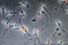 Studi Terbaru: Covid-19 Bisa Turunkan Kualitas Sperma, Kok Bisa?
