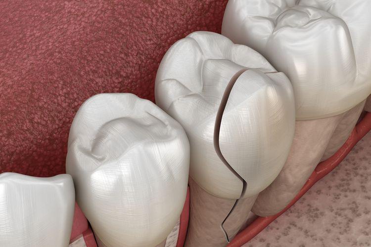 Ilustrasi fraktur gigi atau gigi retak