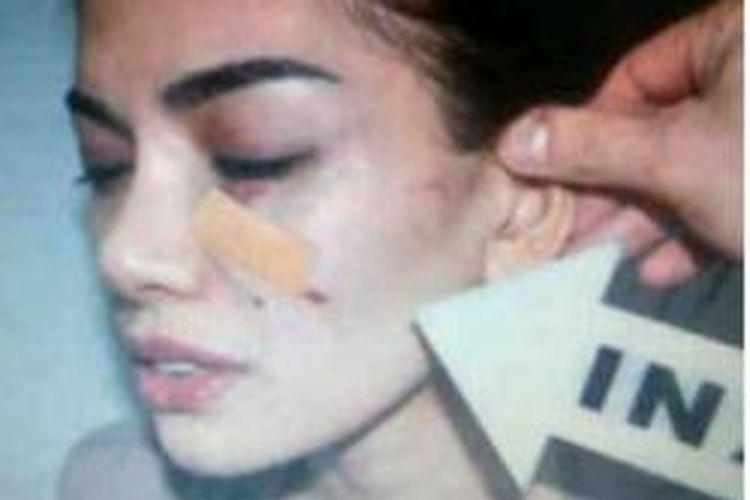 Wajah artis Nikita Mirzani yang memar akibat pengeroyokan yang dialaminya di sebuah kafe di Bandung, Sabtu (27/7/2013)