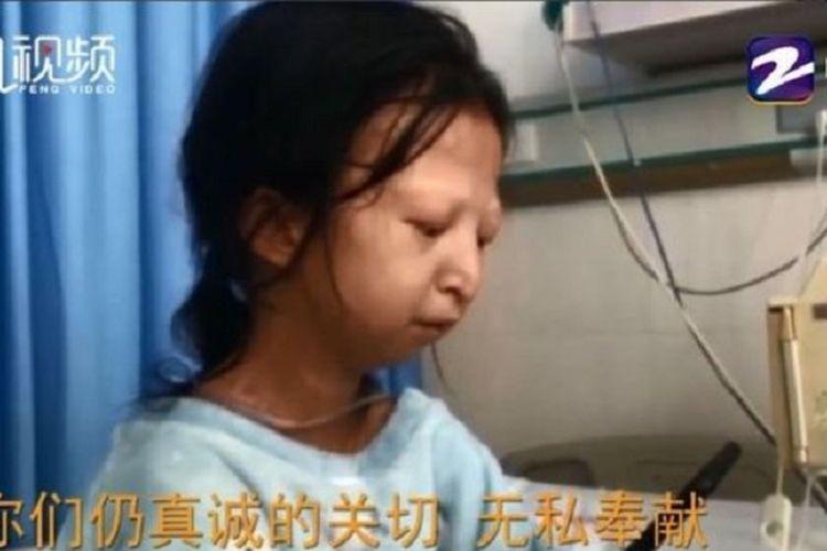 Wu Huayan. Gadis 24 tahun yang menjadi perbincangan di China setelah selama lima tahun terakhir, dia harus hidup hanya dengan Rp 2.000 per hari dan makan nasi serta sambal demi mengobati adiknya yang sakit.