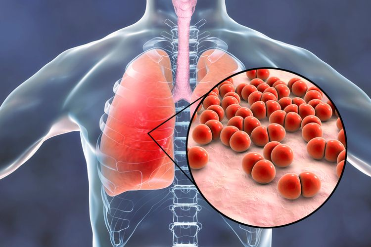Ilustrasi pneumonia