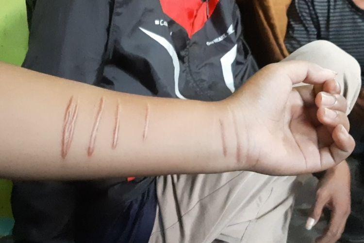 Luka sayatan Ika Musriati PRT yang menjadi korban pengaiayaan terhadap majikan saat ditemui di kediamannya Mlatiharjo Timur, Semarang, Selasa (21/4/2020).