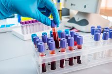 Sedang Dikembangkan, Tes Darah untuk Deteksi 50 Jenis Kanker