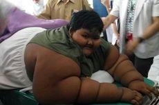 Dari Arya Permana hingga Sunarti, Ini Tiga Kasus Obesitas di Karawang
