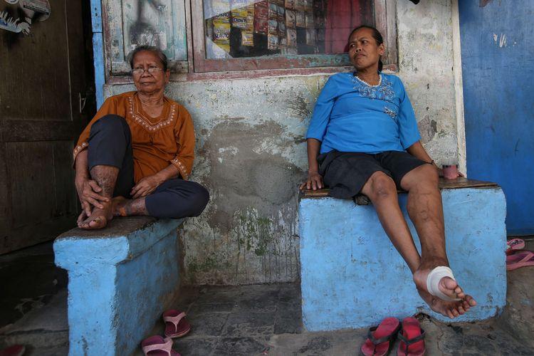 Eks penderita kusta di Kampung Sitanala, Kelurahan Karangsari, Kecamatan Neglasari, Kota Tangerang, Banten, Selasa (20/8/2019). Di kampung yang berada di belakang RS dr. Sitanala ini dihuni sekitar 1000 eks penderita kusta dan keluarganya.