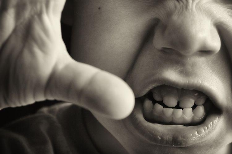 Ilustrasi anak marah, emosi anak, tumbuh kembang, perkembangan emosi anak.