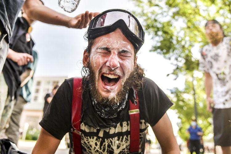 Seorang pria bereaksi setelah disemprot cairan lada saat protes pada 29 Mei 2020 di Denver, Colorado. Ini adalah hari kedua protes di Denver, lebih banyak demonstrasi direncanakan pada akhir pekan. Demonstrasi terjadi di seluruh AS setelah George Floyd meninggal dalam tahanan polisi pada 25 Mei di Minneapolis, Minnesota.