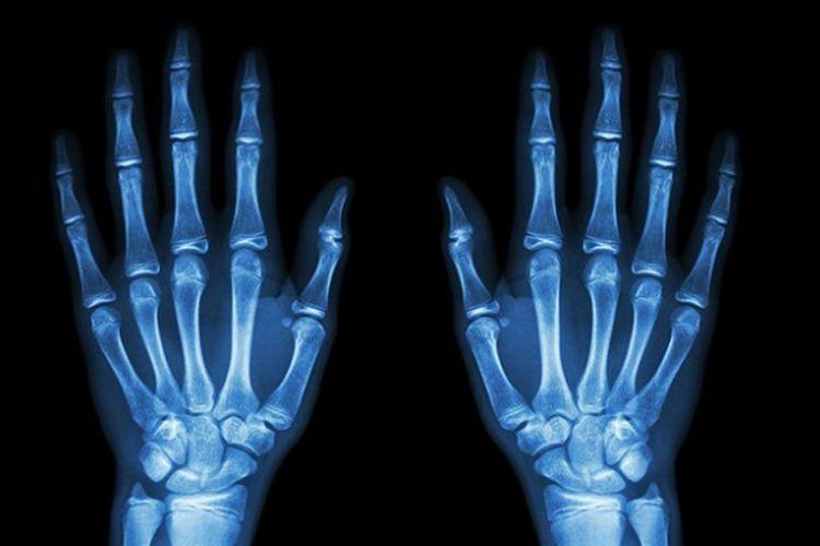 Ilustrasi tulang manusia