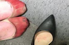 Wajib Kerja dengan Sepatu Tinggi, Kaki Karyawan Bersimbah Darah