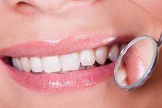 Kenali Perangkat Pemutih Gigi di Rumah