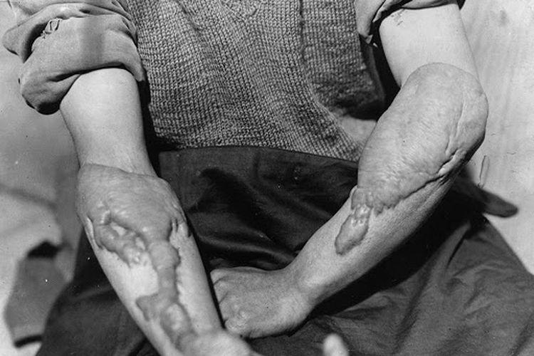 Salah seorang korban bom nuklir di Hiroshima mengalami dampak dari bom nuklir.