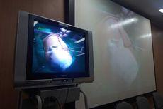Cerita di Balik Operasi 6 Jam Bayi Kembar Siam Aqila-Azila