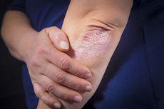 Psoriasis: Gejala, Komplikasi, Faktor Risiko hingga Terapi Penyakit Kulit Autoimun