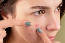 11 Penyebab Jerawat, Stres hingga Salah Pakai Skincare