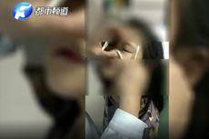 Dokter Keluarkan Potongan Kertas yang Masuk di Mata Gadis 7 Tahun Ini