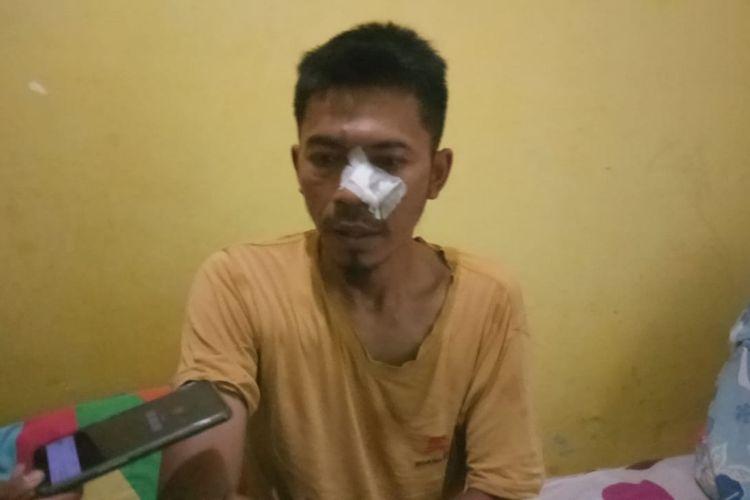 Agus (41) warga Villa Citra Bantarjati, Kota Bogor, saat ditemui di rumahnya, Senin (19/8/2019). Agus menjadi salah satu korban penganiayaan yang dilakukan puluhan oknum anggota Brimob saat perayaan 17 Agustus yang digelar di lingkungan tempat tinggalnya.