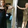 Stres karena Pandemi Covid-19, Gadis 8 Tahun Cabut Rambut Sampai Nyaris Botak