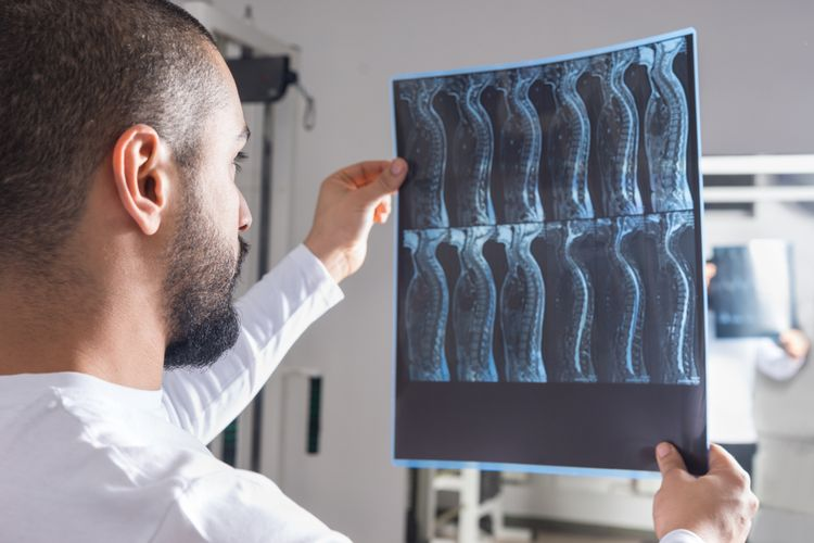 Ilustrasi dokter melihat gambar X-ray tulang belakang. Kasus peradangan tulang belakang langka yang terkait Covid-19 meningkat selama pandemi.