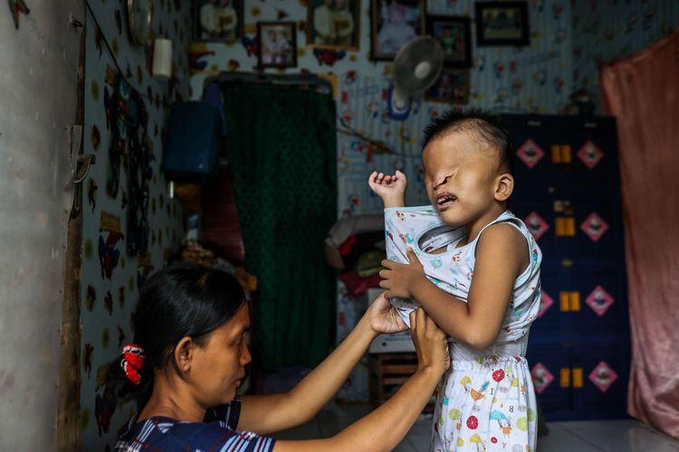 Fitri Apriliana (30) memakaikan baju kepada anaknya, Azmi Ramadan dirumahnya di Gang Nusa Indah 1, RT 04/03, Ciracas, Jakarta Timur, Rabu (9/6/2021). Azmi Ramadan terlahir dengan satu ginjal dan kondisi wajah yang tidak seperti anak pada umumnya yaitu bagian mata yang tertutup, bibir sumbing, dan tidak memiliki rongga mulut.