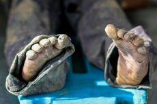 Jenazah Tinggal Tulang Ditemukan Dalam Sumur di Lombok Timur