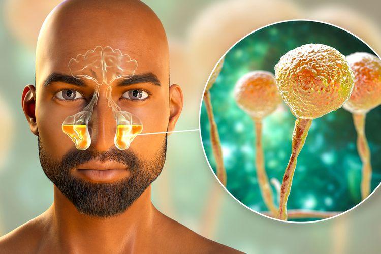 Ilustrasi terinfeksi mukormikosis atau yang biasa disebut infeksi jamur hitam.