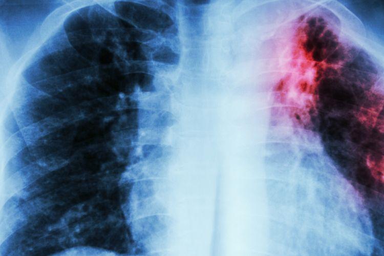 Rontgen dada: infiltrasi interstisial pada paru-paru bagian atas kiri karena infeksi Mycobacterium Tuberculosis