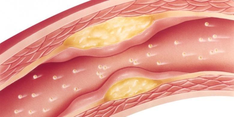 Ilustrasi penyempitan pembuluh darah akibat penumpukan plak lemak.