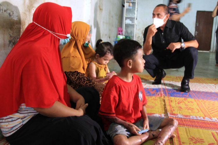Gubernur Sumut, Edy Rahmayadi menjenguk Haikal dan Zakira, dua bocah penderita penyakit kulit aneh di Medan, Minggu (4/7/2021).