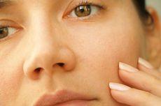 4 Cara Mengatasi Kelopak Mata Beda Sebelah yang Aman