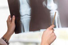 Pakar Unair: Waspada, Malas Gerak Berisiko Alami Osteoporosis