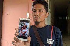 Bayi Kembar Siam Dempet Perut dan Dada Lahir di Medan