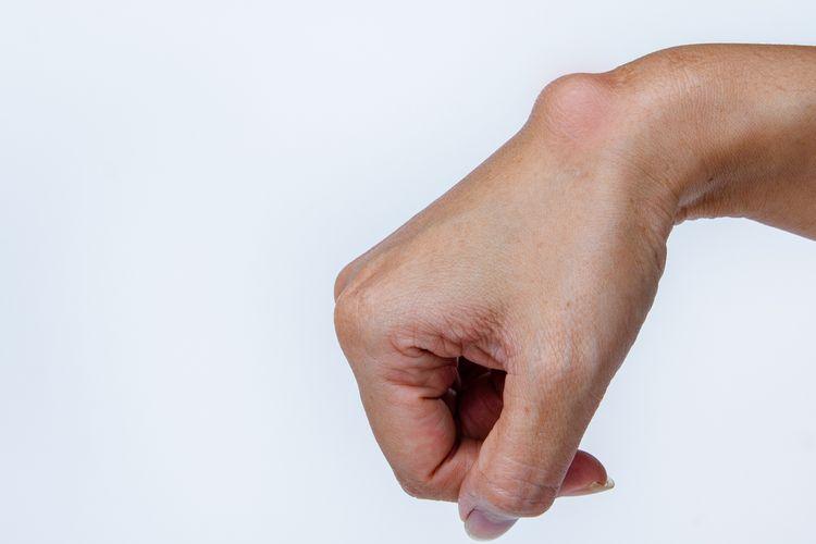 Ilustrasi salah satu jenis kista, yaitu kista ganglion