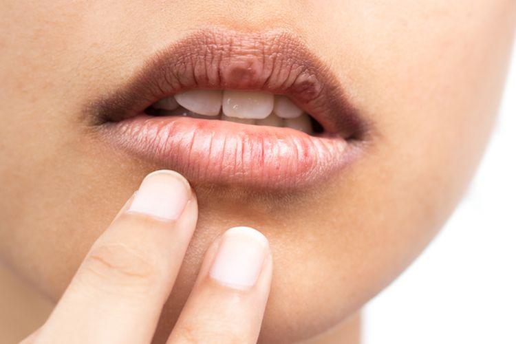 9 Cara Menghilangkan Bibir Hitam Secara Alami Halaman All Kompas Com