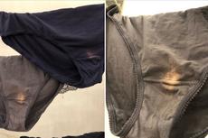 Temukan Bercak Putih Pucat pada Celana Dalam, Perlukah Kuatir?