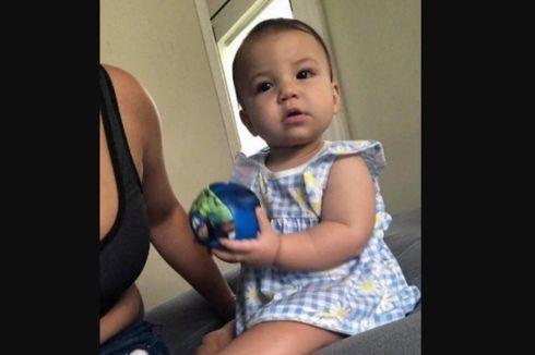 Diserang Anjing Pitbull Peliharaan Keluarga, Bayi Usia 9 Bulan Tewas