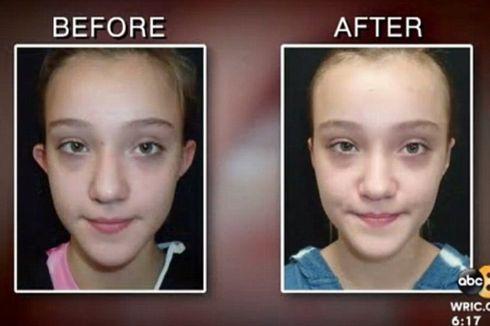 Diejek karena Bentuk Telinganya, Gadis 11 Tahun Pilih Operasi Plastik