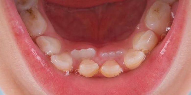 6 Bahaya Karang Gigi Jika Dibiarkan Menumpuk