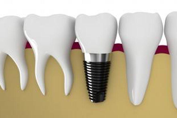 Implan gigi bisa menjadi pilihan yang lebih nyaman dibanding gigi palsu lepasan.