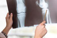 Ketahui Gejala Osteoporosis, Faktor Risiko hingga Dampaknya