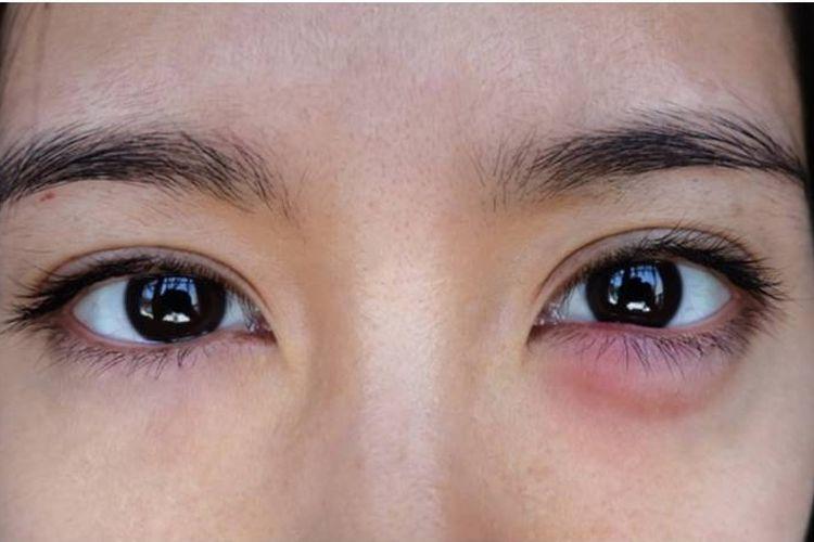Ilustrasi kelopak mata