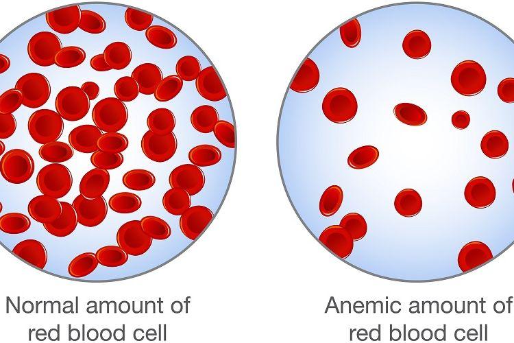 Ilustrasi sel darah merah normal dan anemia atau kekurangan sel darah merah.