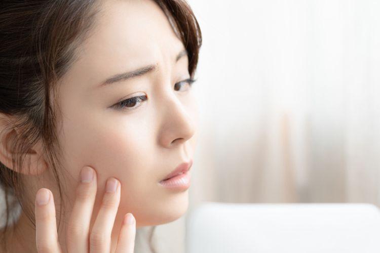 Penggunaan produk kosmetik dengan kandungan berbahaya bisa menimbulkan berbagai permasalahan kulit, termasuk efek samping permanen.