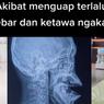 Viral Mulut Tak Bisa Ditutup Akibat Menguap Terlalu Lebar, Ini Penjelasan Dokter