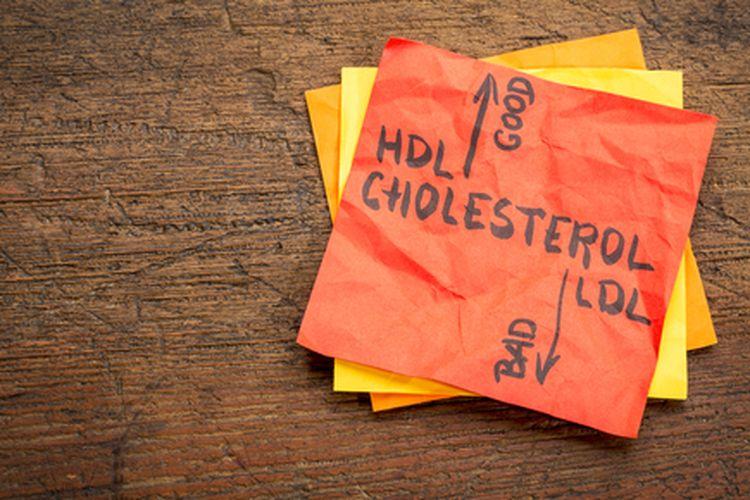 Ilustrasi kolesterol tinggi.