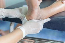 Apa Penyebab Luka Susah Sembuh pada Penderita Diabetes?